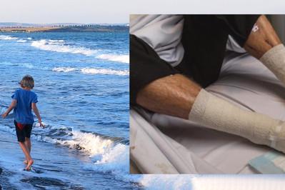 Wszy morskie, które zaatakowały nastolatka występują również w Bałtyku!